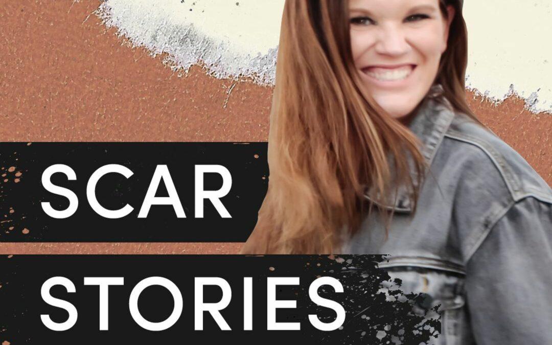 Scar Stories: Jenna Dullilio (Addiction)